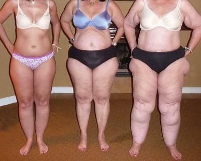 Lipoedeem of obesitas? Hoe zie je het verschil?